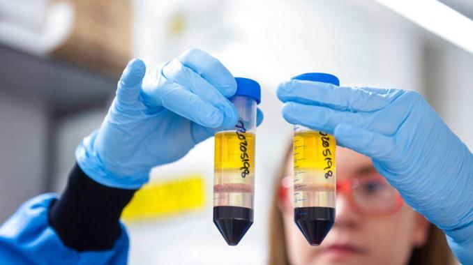 Error opaca efectividad de vacuna contra COVID-19 de AstraZeneca . Noticias en tiempo real