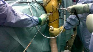¿En qué consiste la artroscopia de rodilla?